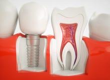 Dents saines et un implant - rendu 3d Photos libres de droits