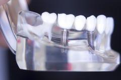 Dentsts牙齿牙植入管 库存照片