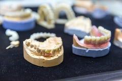 Denture, простетическое зубоврачевание, зубные имплантаты стоковые изображения