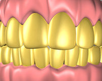 Denture. 3d image of teeth with gold teeth stock illustration