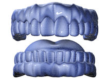 Denture. 3d image of mesh denture isolared in white royalty free illustration