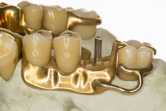 Denture (about 1950). Isolated tooth model from a dental laboratory stock photo