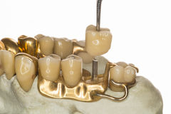 Denture (about 1950) Royalty Free Stock Photo
