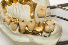 Denture (about 1950). Isolated tooth model from a dental laboratory royalty free stock photography
