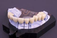 Denture. Dental bridge at laboratory Stock Image