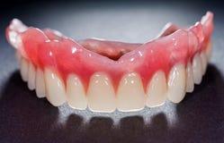 denture стоковая фотография