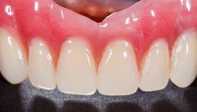 denture стоковое изображение rf