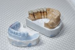 The denture on the artificial jaw Stock Images