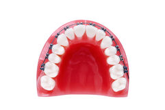 Denture with braces Stock Photos