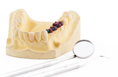 Denture cast model and dental tools Stock Image