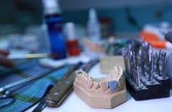 Denture Stock Photo