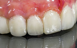 Denture, dental bridge. On black background stock images