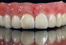 Denture, dental bridge. On black background royalty free stock photography