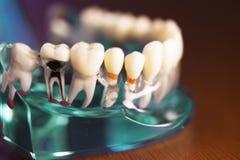 Denture dla dentystyka uczni obraz royalty free