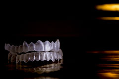 Denture invisible orthodontics. Invisible orthodontics on black background and gold Stock Images