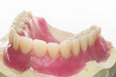 Denture. Isolated denture from a dental laboratory stock photo