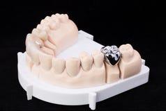 Denture Stock Photography