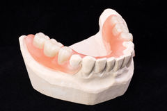 Denture Royalty Free Stock Photo