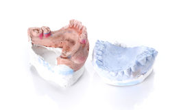 Denture mold,broken tooth on white background. Stock Images