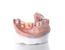 Denture mold,false teeth on white background. Stock Photos