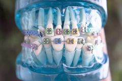 Classic dental metal orthodontics with colored hooks. Denture for students with classic dental metal orthodontics. Color aesthetic couplings Royalty Free Stock Image