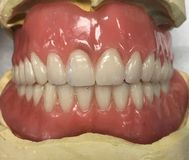 Denture Stock Photos
