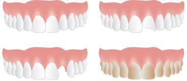 Denture upper plate. Broken, chipped, stained teeth stock illustration