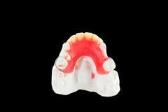 Denture wax model. On black Royalty Free Stock Photo
