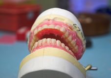 Dentures. A Rough Set of Dentures in the making stock images