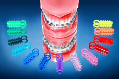 Dentures with braces stock images