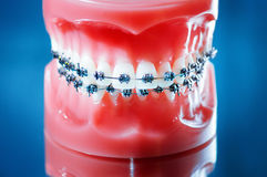 Dentures with braces royalty free stock photography
