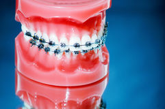 Dentures with braces Stock Photos