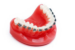 Dentures with braces Royalty Free Stock Photo