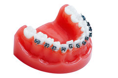 Dentures with braces Stock Photo