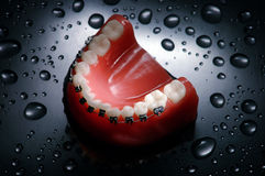 Dentures with braces Royalty Free Stock Images