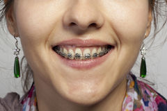 Dentures with braces Stock Photography