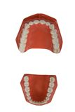 Dentures, dental prosthesis Royalty Free Stock Images