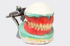 Dentures i korony Fotografia Royalty Free