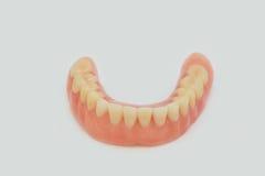 Dentures i korony Obraz Stock