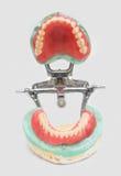 Dentures i korony Zdjęcia Royalty Free