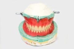 Dentures i korony Fotografia Stock