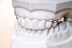 Dentures Royalty Free Stock Photography