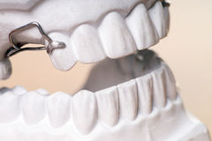 Dentures Royalty Free Stock Images