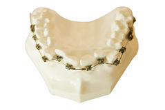 Dentures, orthodontic wire Stock Photos