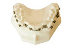 Dentures, orthodontic wire Stock Photos
