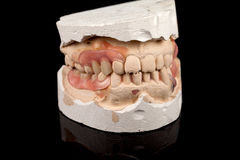 Dentures on a plaster cast Stock Image