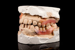 Dentures on a plaster cast Royalty Free Stock Photos