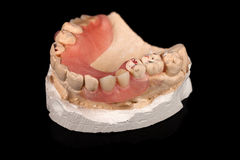 Dentures on a plaster cast Royalty Free Stock Images