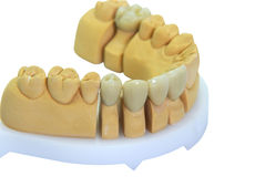 Dentures with porcelain teeth Royalty Free Stock Photo