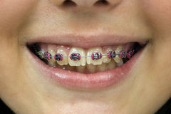 dentures uśmiechu kobiety potomstwa Obraz Stock